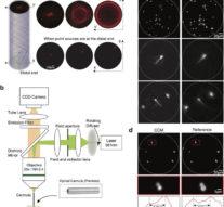 Ученые научились сканировать мозг с помощью иглы и лазера