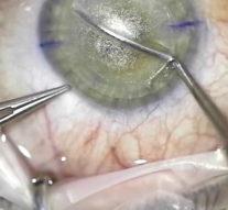 Телеметрия с лазера для коррекции зрения: полная операция с комментариями (не для слабонервных) + видео
