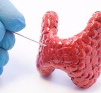 Голографический микроскоп без линзы может удешевить диагностику рака + видео