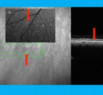 Болезнь Альцгеймера разглядели в глазах пациентов с помощью лазера
