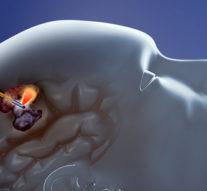Monteris публикует положительные клинические данные для лазерного лечения мозга