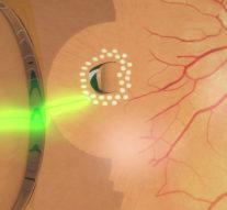 Тоньше алмазного ножа. Как лазерная хирургия помогает возвращать людям зрение