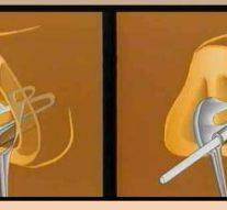 Лазер поможет создавать имплантаты любой формы