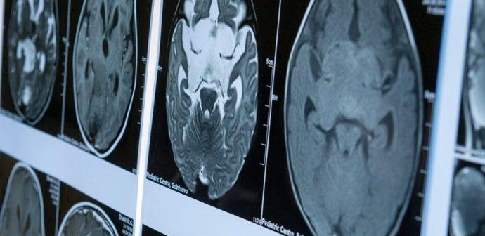Российскими учёными найден способ остановить рак мозга с помощью использования лазерного излучения