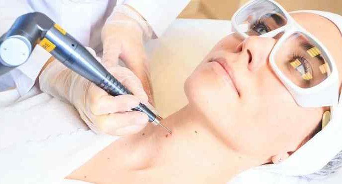 Удаление лазером дефектов и образований на коже: особенности процедуры